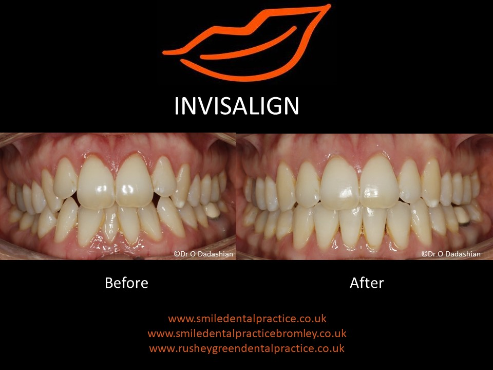 Invisalign Free Consultation   Smile Dental Practice ...